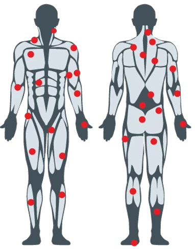 trigger point therapy tool